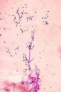Verticilosis Conidias